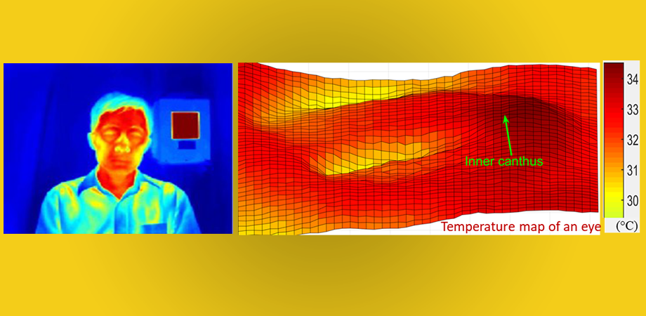 Cool Eyes on Fever Screening: Optimizing Infrared Thermography