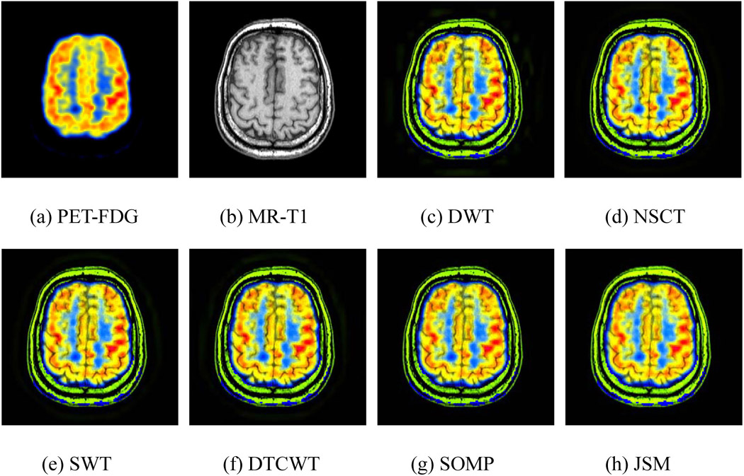 medical image fusion based on joint sparse method Joint medical image fusion, denoising and enhancement via discriminative low-rank sparse dictionaries learning  and enhancement method based on low-rank sparse .
