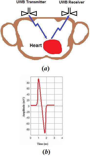 noninvasive vital signal detector essay